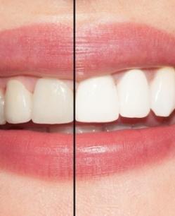 Отбеливание зубов в стоматологии: цена в Новосибирск фото